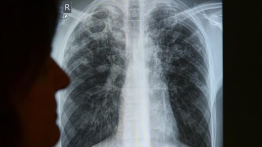 Im Berliner Tuberkulose-Zentrum wird die Röntgenaufnahme eines Patienten ausgewertet