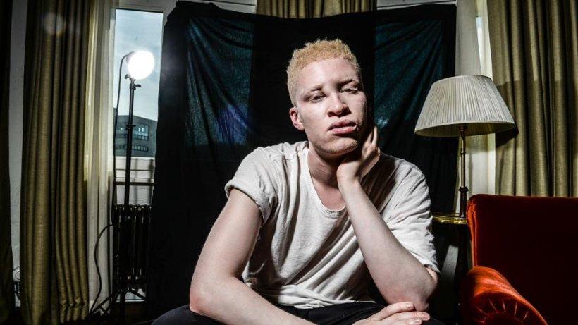 ein treffen mit albino model shaun ross im soho house leute in berlin promis prominente. Black Bedroom Furniture Sets. Home Design Ideas