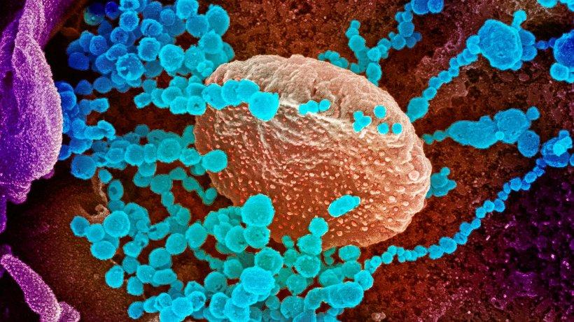 Corona-Newsblog Berlin: Bislang sechs Coronavirus-Infizierte - Warteschlange an Charité